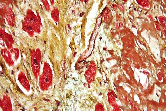हृदयवाहिका रोग Cardiovascular disease