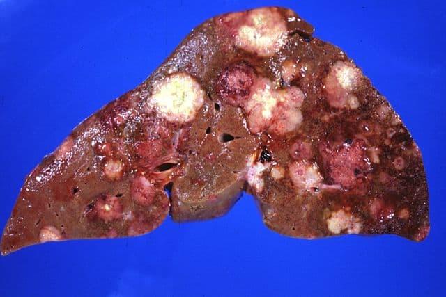 यकृत रोग Liver disease
