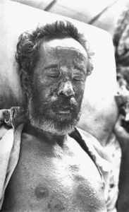 चेचक Smallpox